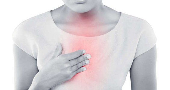 reflusso acido gastroesofageo